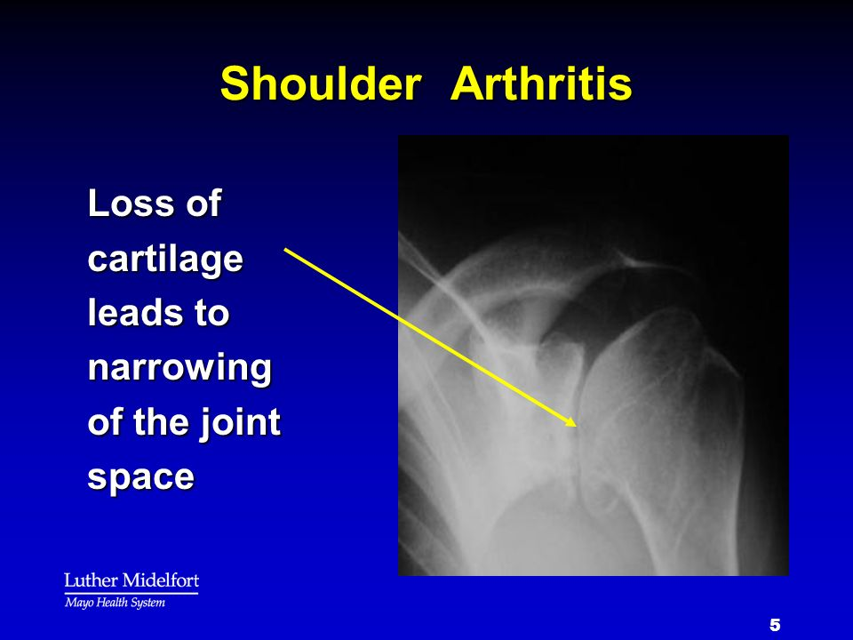 Shoulder Arthritis Loss of cartilage leads to narrowing of the joint space