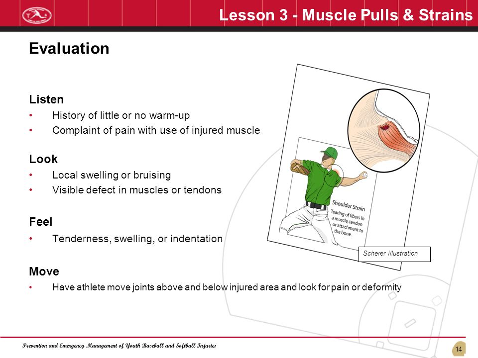 Lesson 3 - Muscle Pulls & Strains