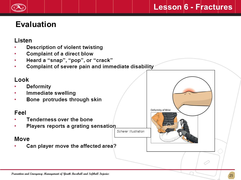Lesson 6 - Fractures Evaluation Listen Look Feel Move