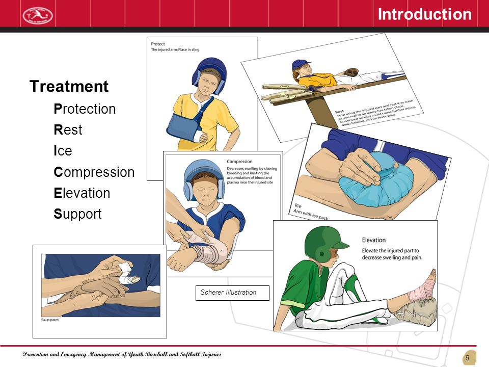 Introduction Treatment Protection Rest Ice Compression Elevation