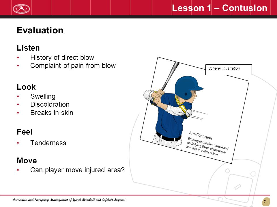 Lesson 1 – Contusion Evaluation Listen Look Feel Move