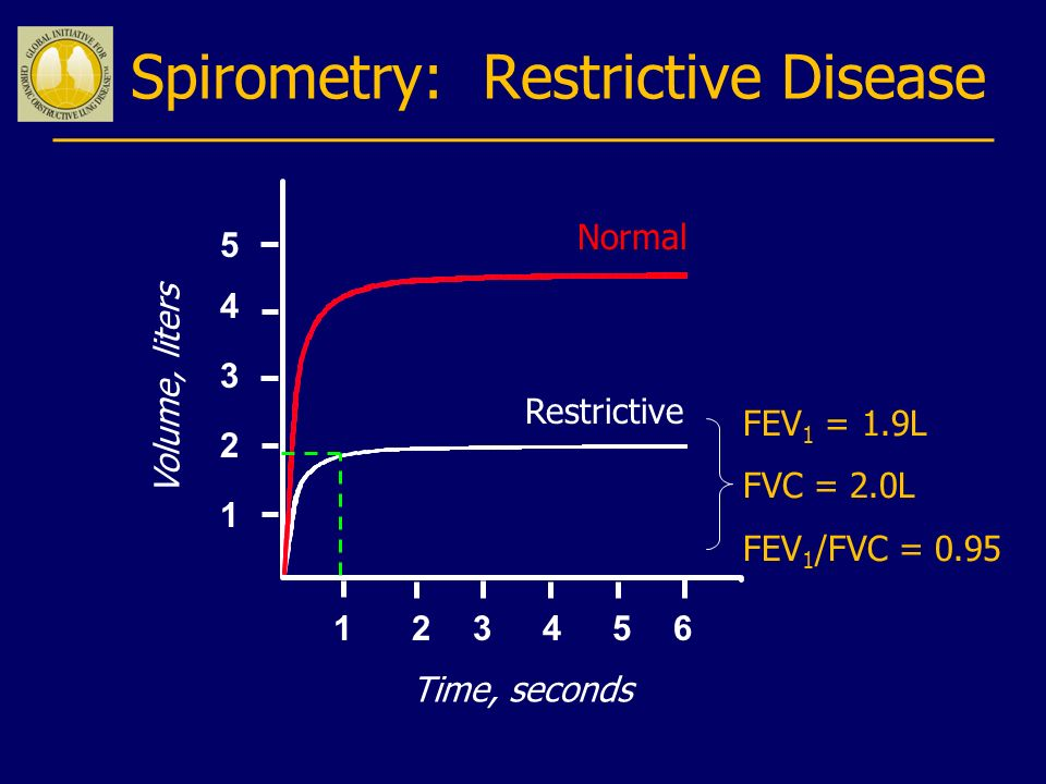 Spirometry: Restrictive Disease