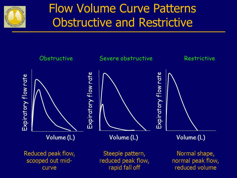 Flow Volume Curve Patterns Obstructive and Restrictive