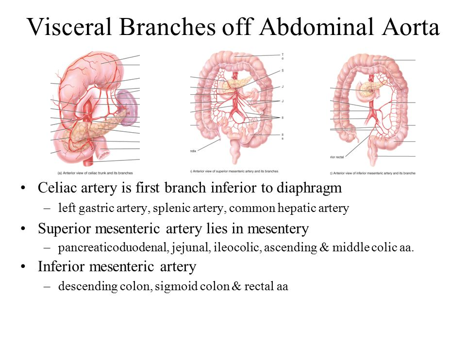 Visceral Branches Of Abdominal Aorta Sacciform Aneurysm Of The