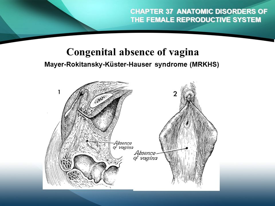 13 Congenital absence of vagina