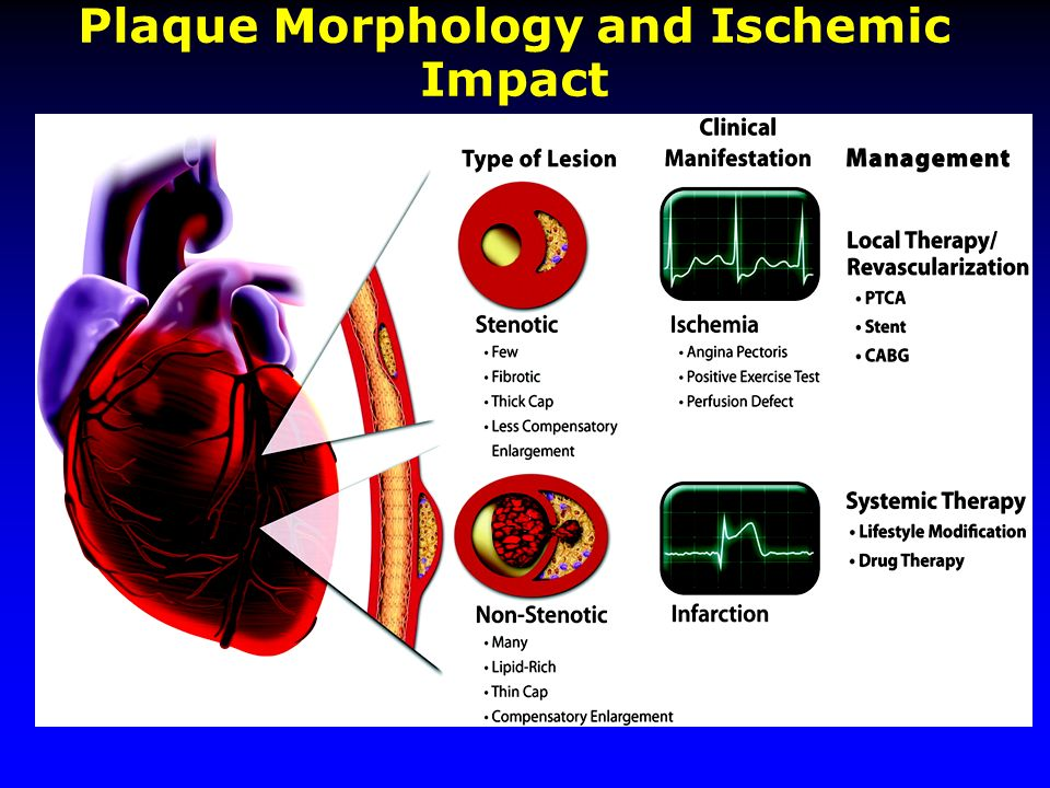 Plaque Morphology and Ischemic Impact