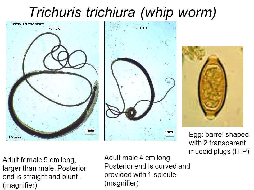 Trichuris trichiura worm