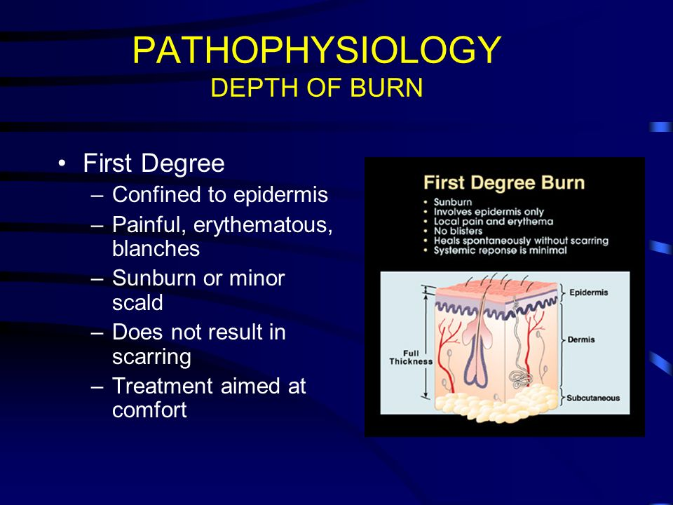THERMAL INJURY  - ppt video online download