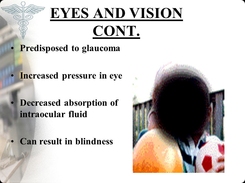 EYES AND VISION CONT. Predisposed to glaucoma