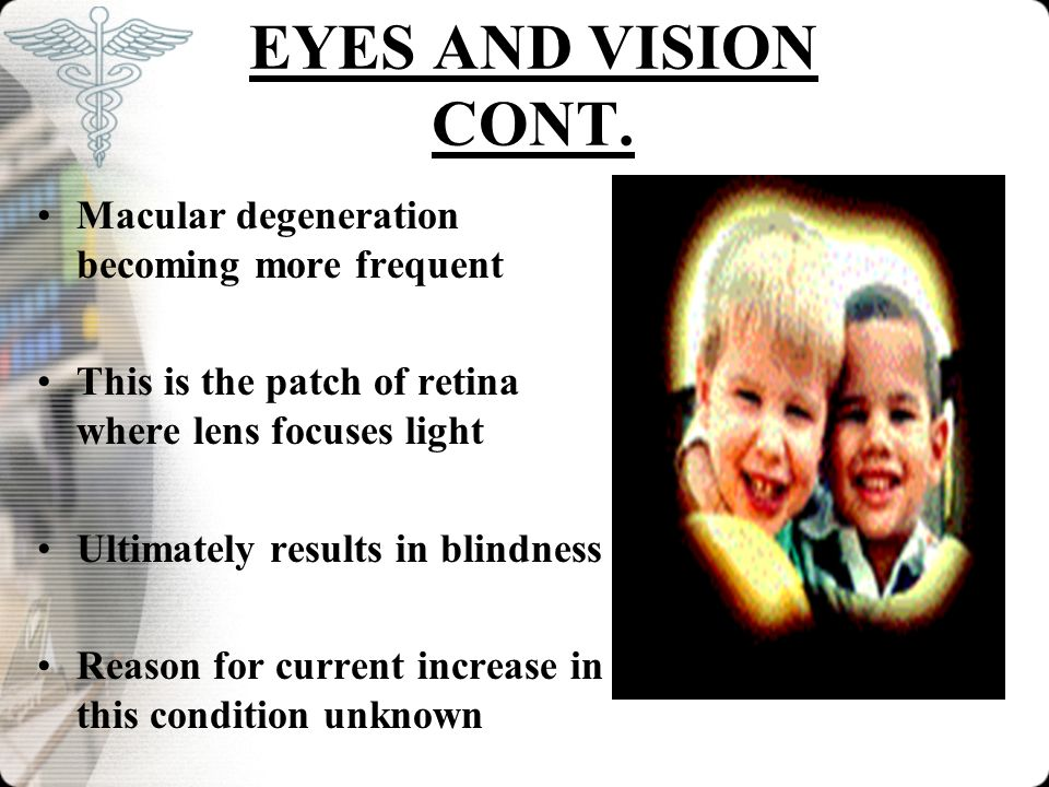 EYES AND VISION CONT. Macular degeneration becoming more frequent