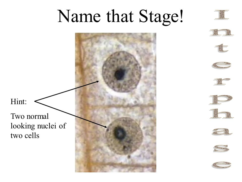 Name that Stage! Interphase Hint:
