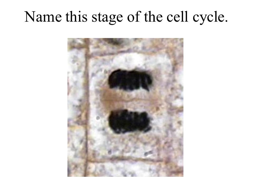 Name this stage of the cell cycle.