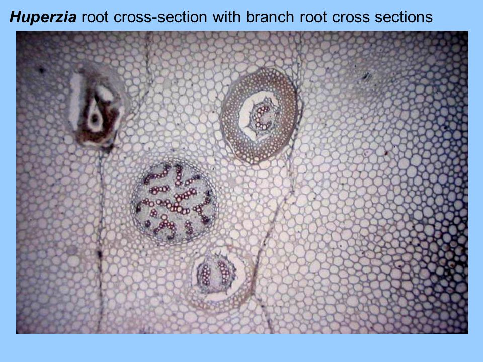 Huperzia root cross-section with branch root cross sections