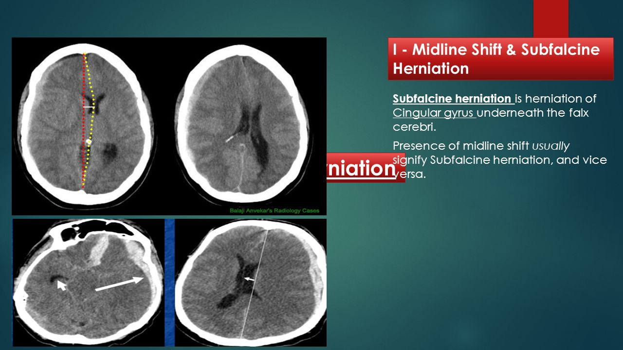 IV - Herniation I - Midline Shift & Subfalcine Herniation