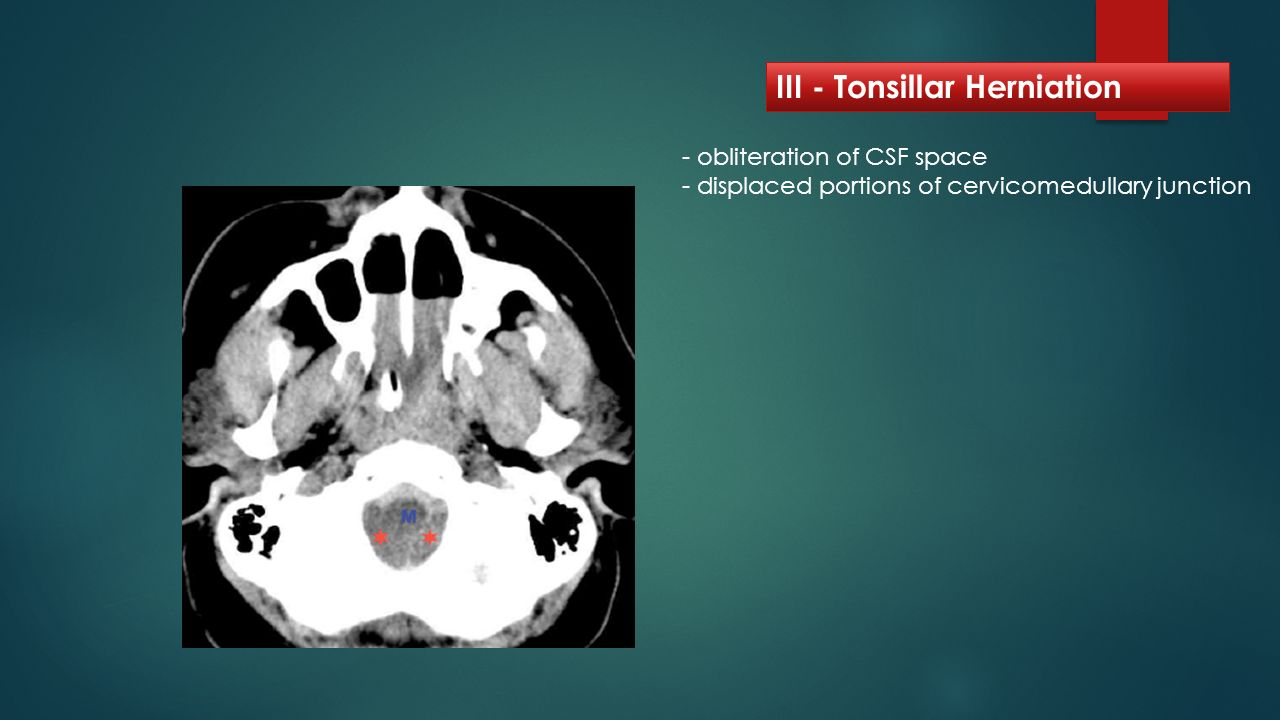 III - Tonsillar Herniation