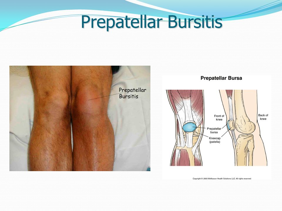 Soft Tissue Disorders Of The Lower Extremity Ppt Video Online Download