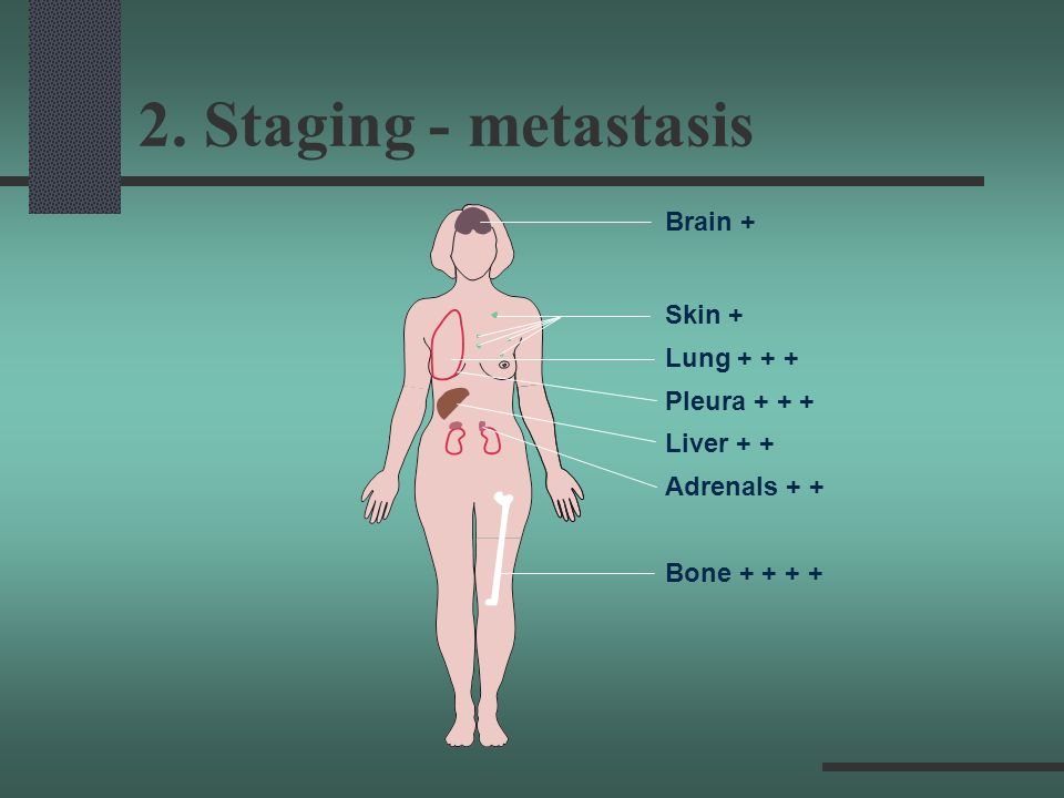 2. Staging - metastasis Brain + Skin + Lung + + + Pleura + + +