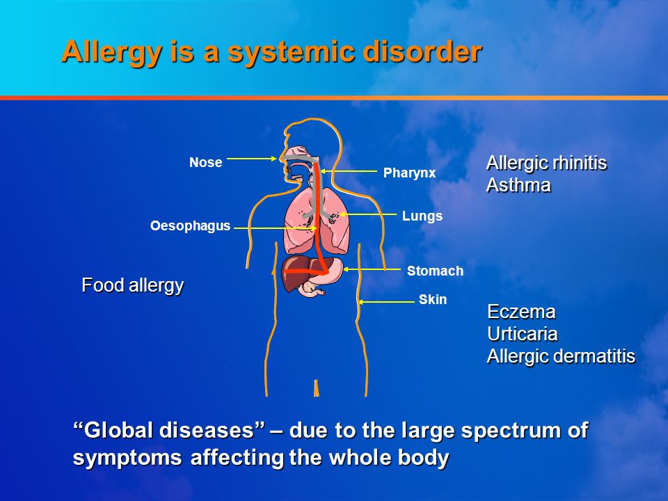 Allergy is a systemic disorder