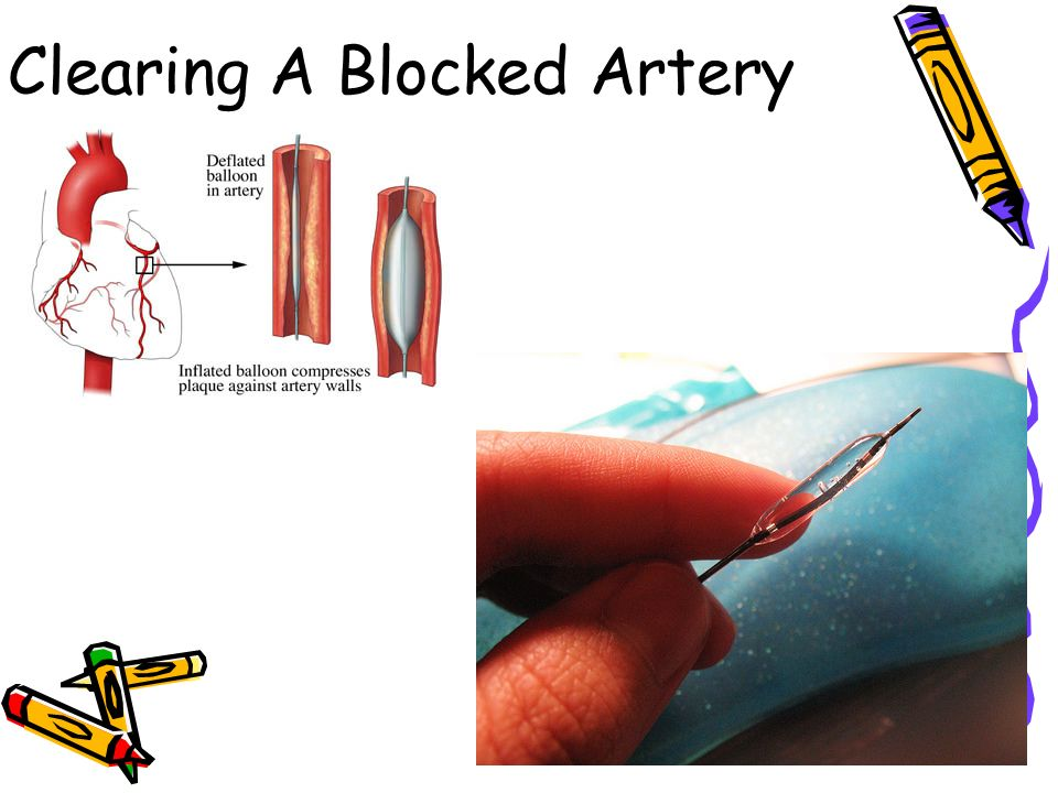 Clearing A Blocked Artery