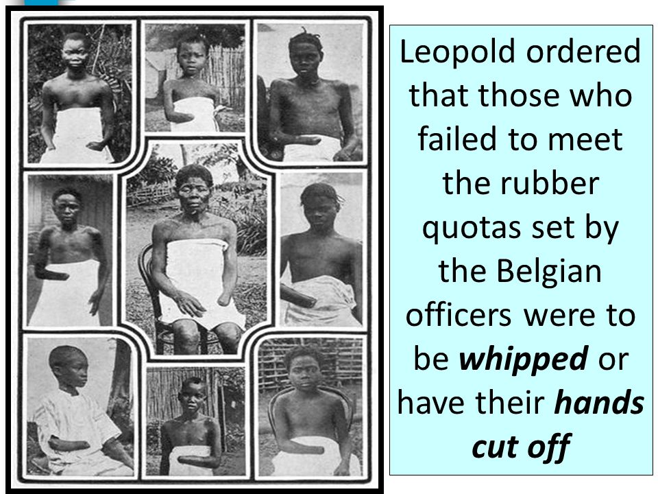 Leopold ordered that those who failed to meet the rubber quotas set by the Belgian officers were to be whipped or have their hands cut off
