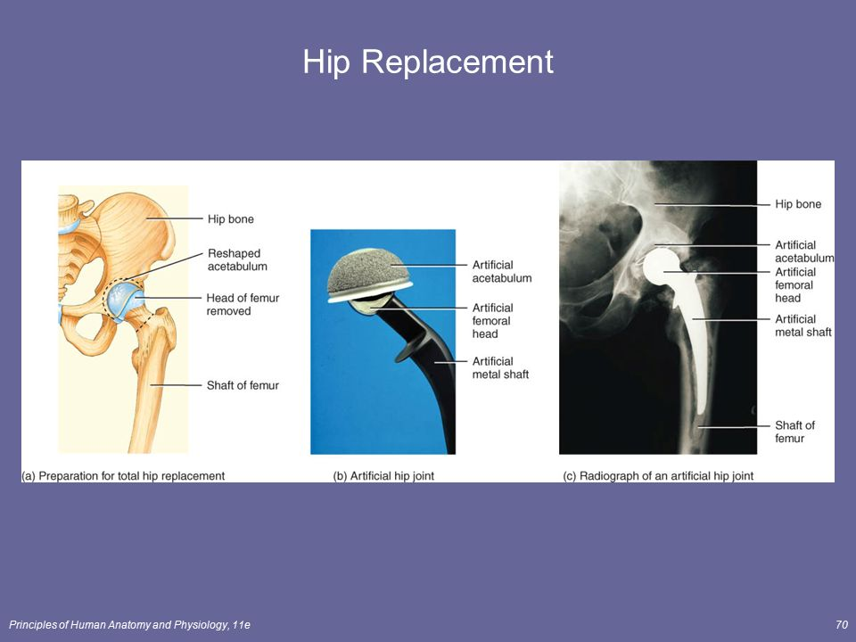 Funky Hip Anatomy And Physiology Adornment - Anatomy And Physiology ...