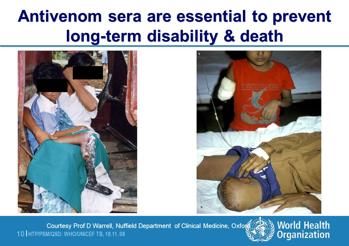 Antivenom sera are essential to prevent long-term disability & death