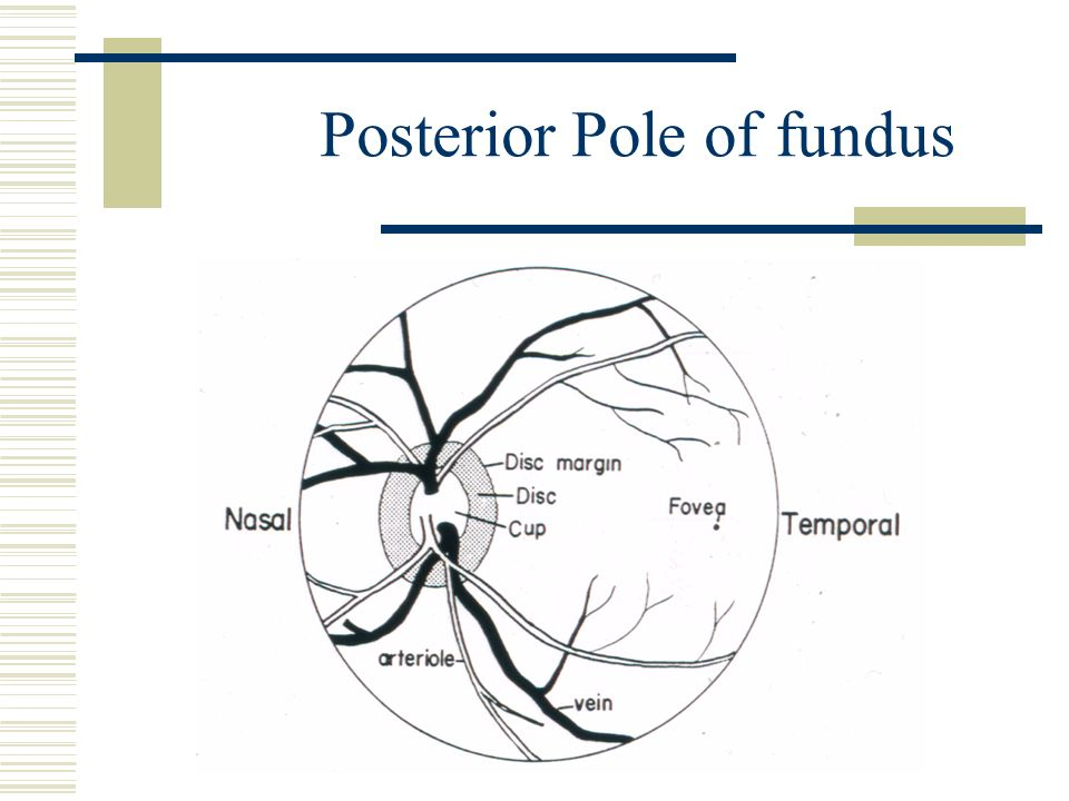 direct ophthalmoscope ppt video online download rh slideplayer com diagram fundus of uterus fundus diagram of diabetic retinopathy