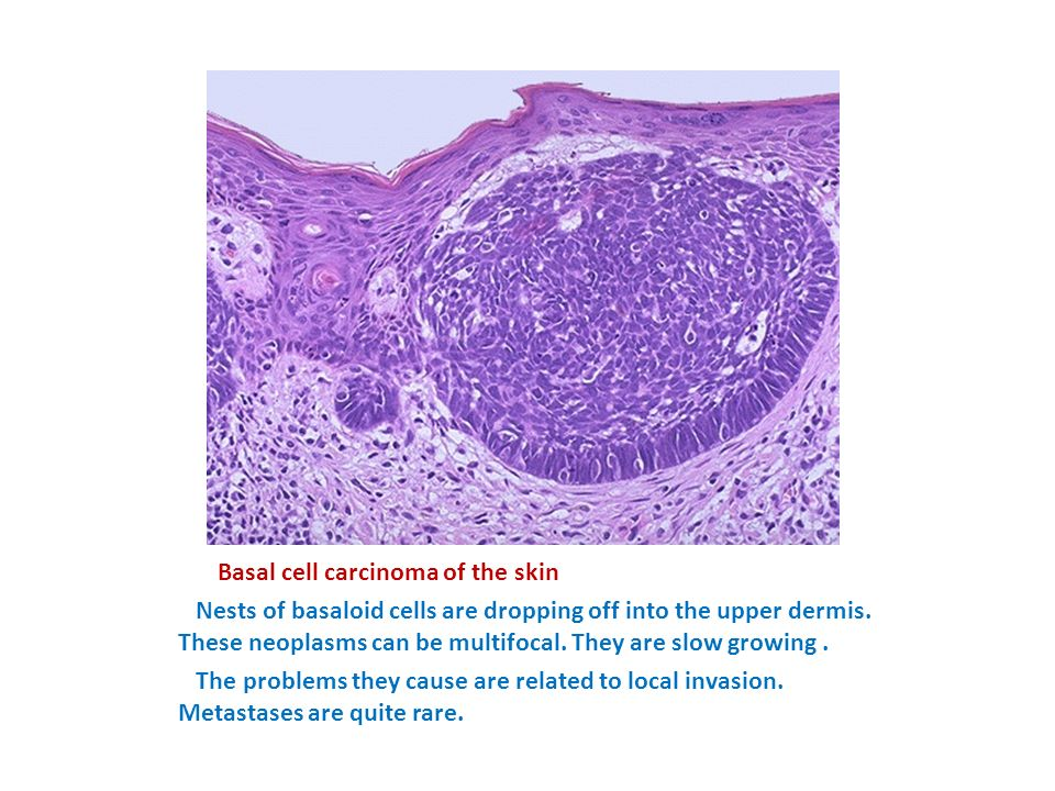 Basal cell carcinoma of the skin