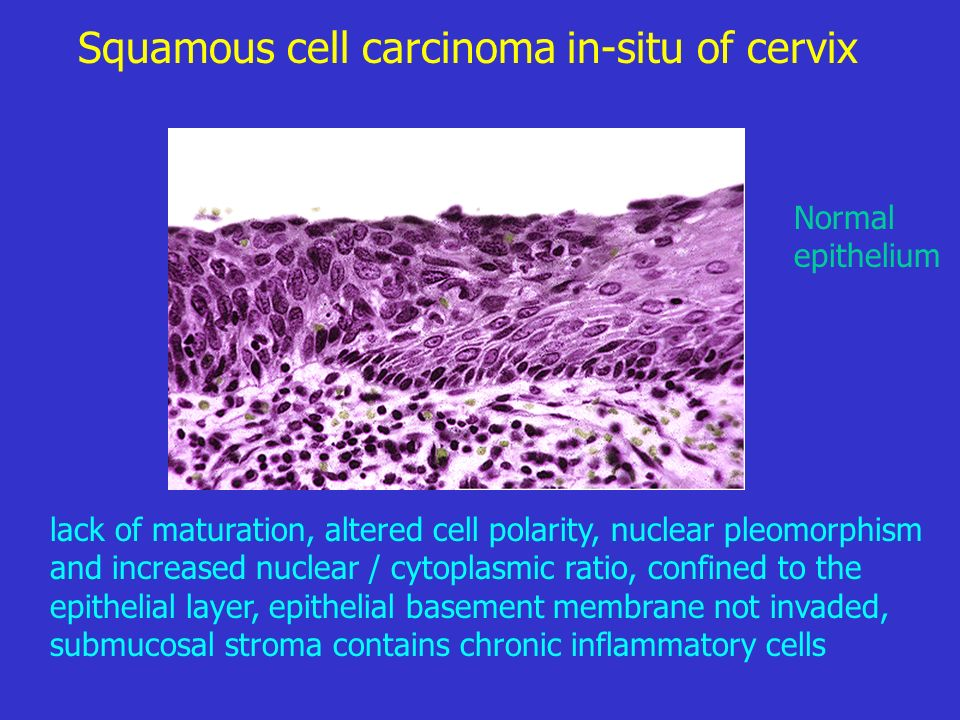Squamous cell carcinoma in-situ of cervix