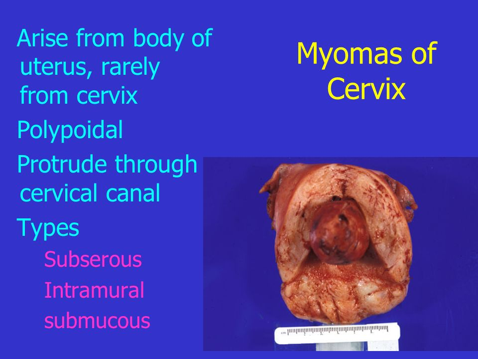 Myomas of Cervix Arise from body of uterus, rarely from cervix