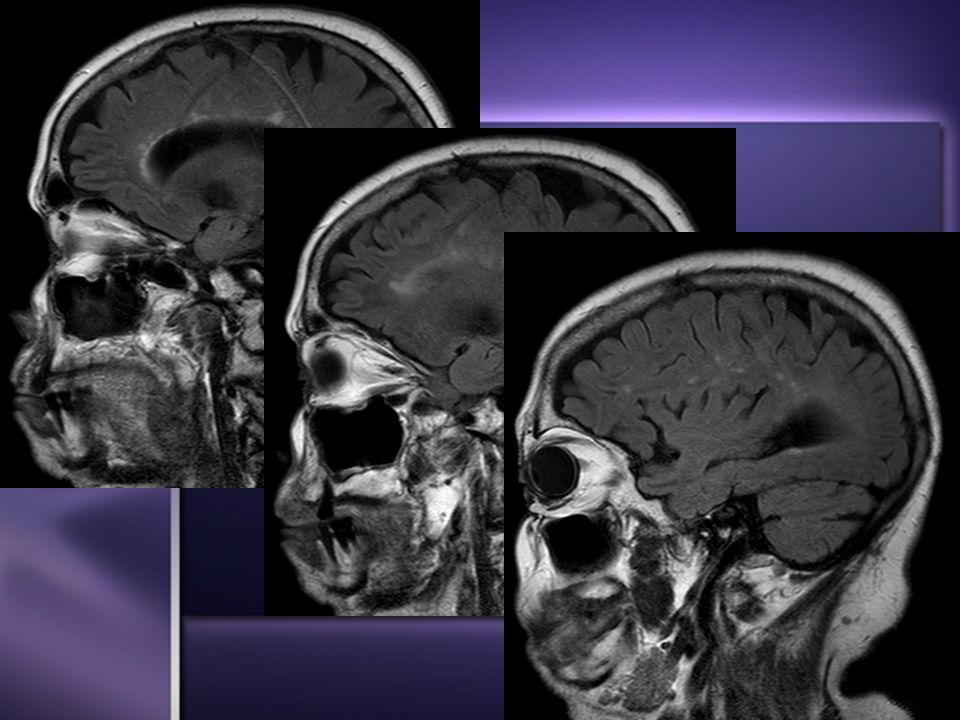Sagittal FLAIR images - Stable nonenhancing hyperintensities within ...