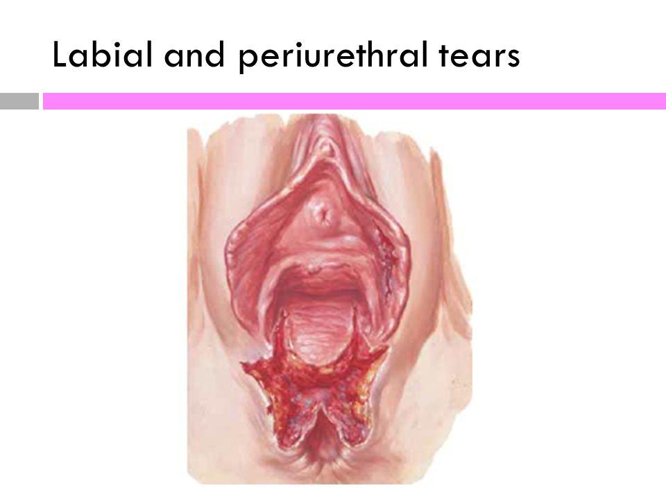 Tear near the clitoris photos 265