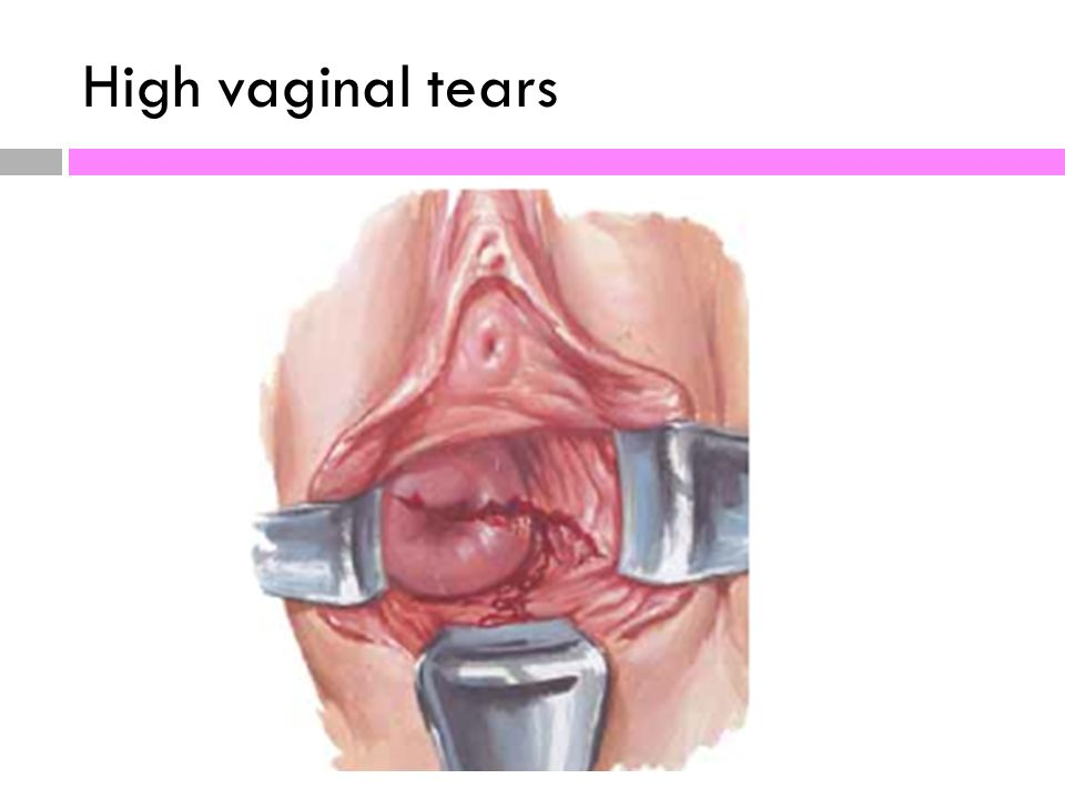 Pictures of vaginal tears or episiotomy