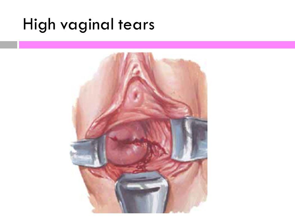 Tear near the clitoris photos 475