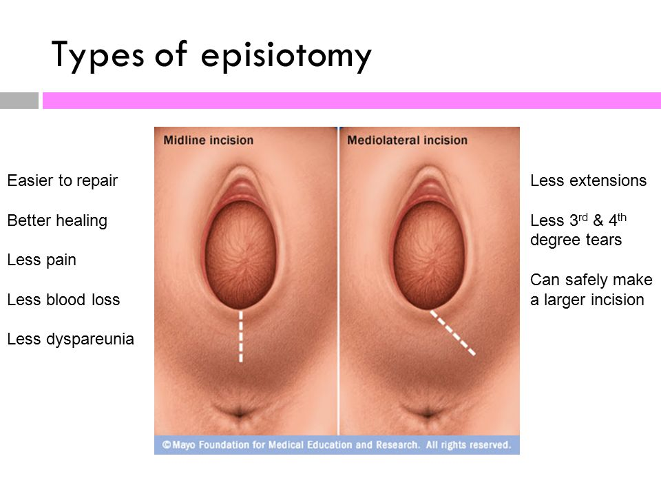 Episiotomy Healing Pictures