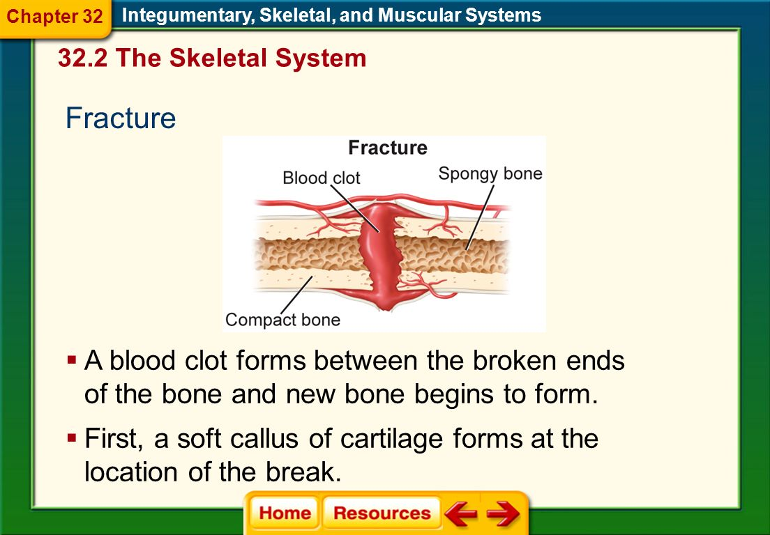 Chapter 32 Integumentary, Skeletal, and Muscular Systems. 32.2 The Skeletal System. Fracture.
