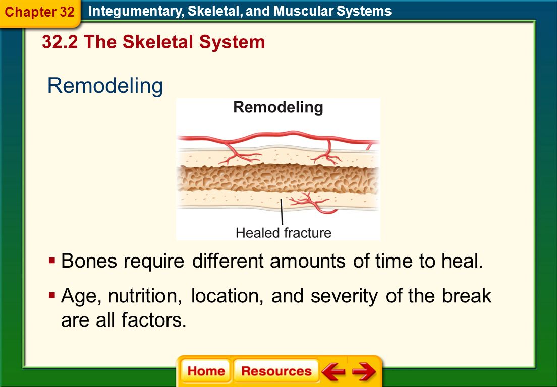 Remodeling Bones require different amounts of time to heal.