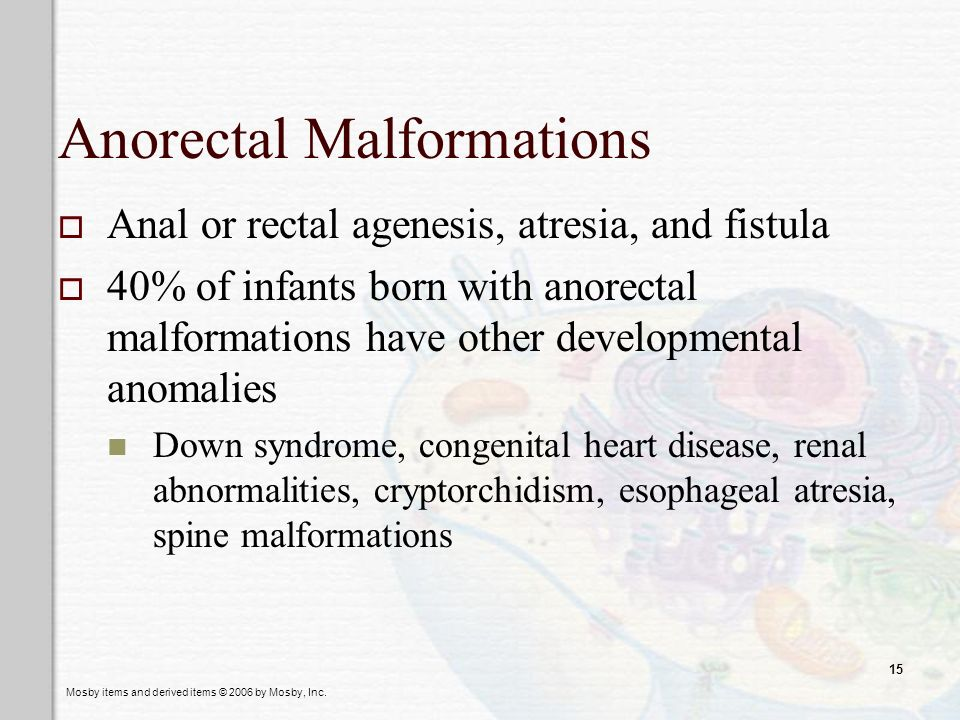 Anorectal Malformations