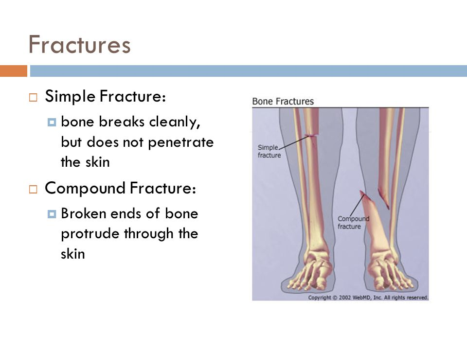 Fractures and Bone Healing - ppt video online download