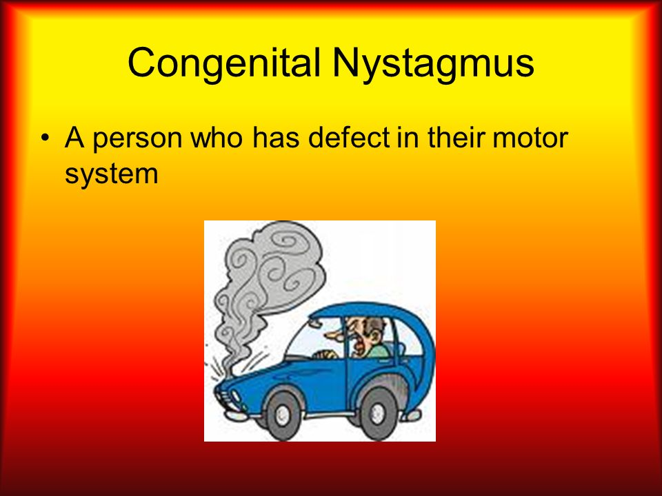 Congenital Nystagmus A person who has defect in their motor system