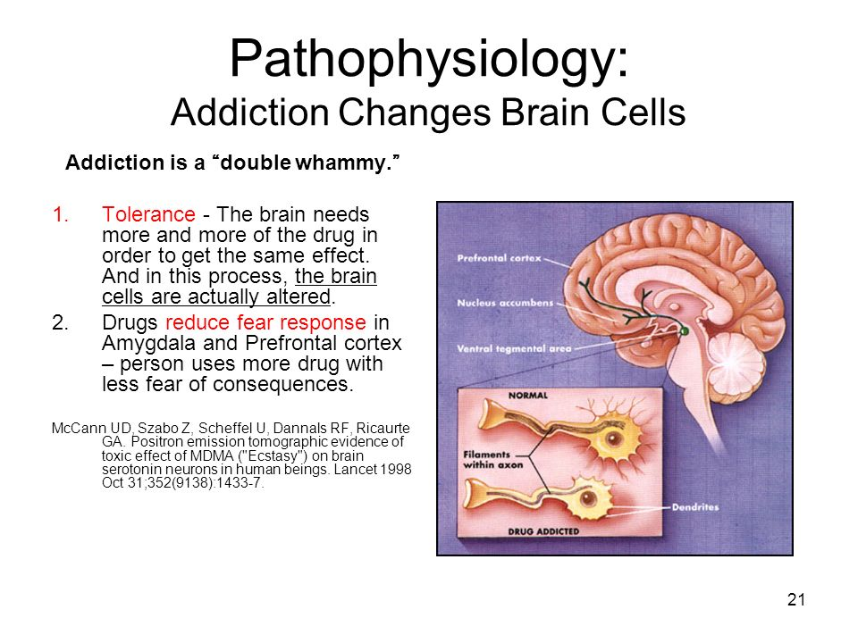 Pathophysiology: Addiction Changes Brain Cells