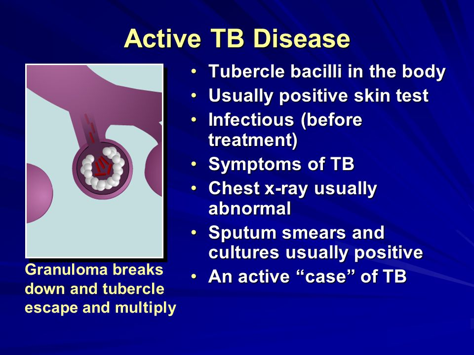 Active TB Disease Tubercle bacilli in the body