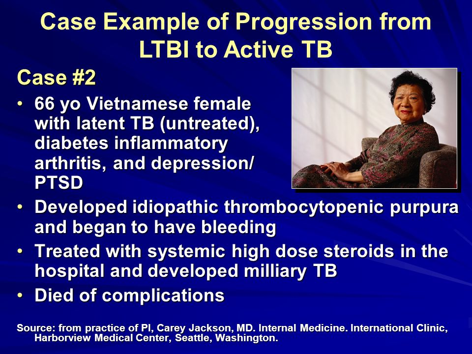 Case Example of Progression from LTBI to Active TB