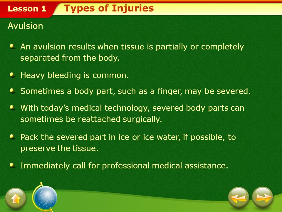 Types of Injuries Avulsion