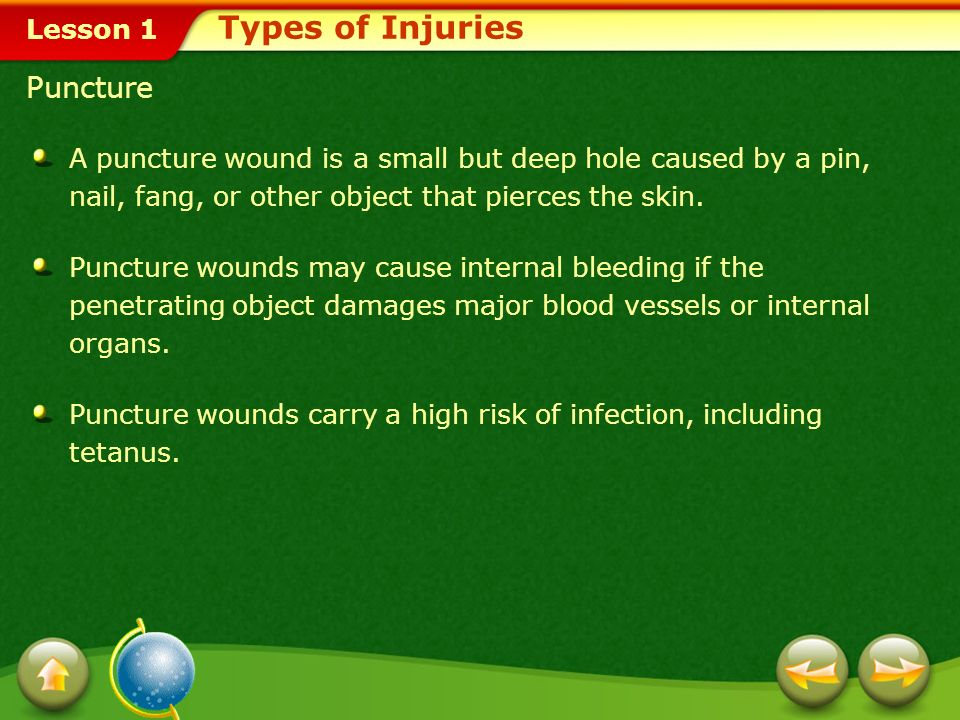 Types of Injuries Puncture