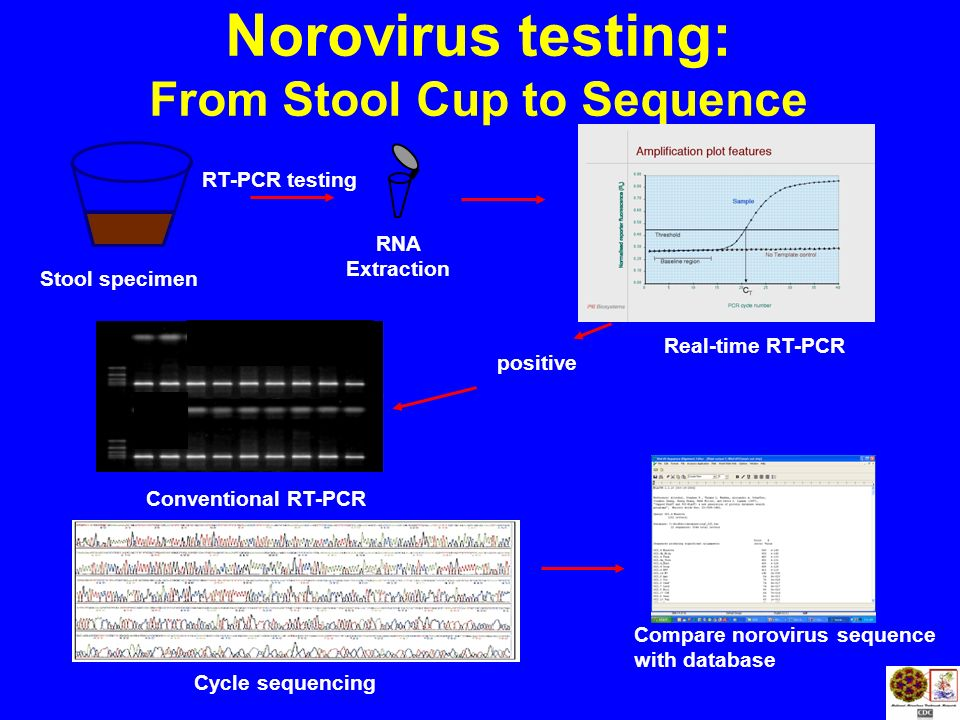 From Stool Cup to Sequence