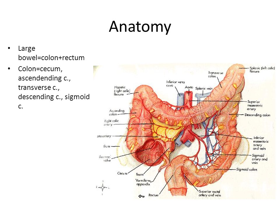 Colon and rectal cancer - ppt video online download