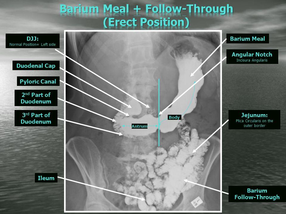 Barium studies for git radiographic anatomy pathology ppt video 6 barium ccuart Choice Image