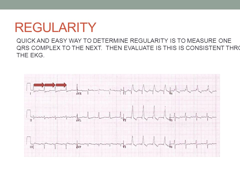 ADVANCED EKG INTERPRETATION - ppt download