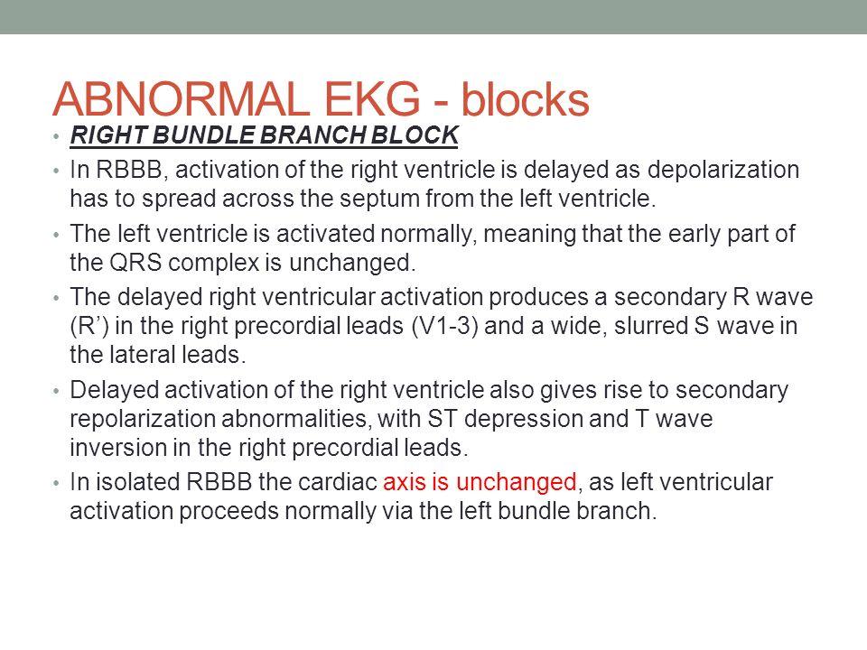 ADVANCED EKG INTERPRETATION - ppt download